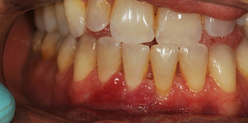 Tannkjøttet er trukket tilbake etter retraksjonskirurgi hos Anders Wangestad ved Oris Dental Løkketangen i Sandvika.