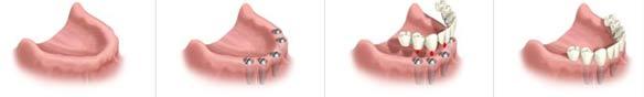 Ersatt en eller flere tapte tenner med tannimplantat. Her ser vi en tannløs underkjeve før titanskruer er satt inn, og etterbilder av implantat på disse skruene.